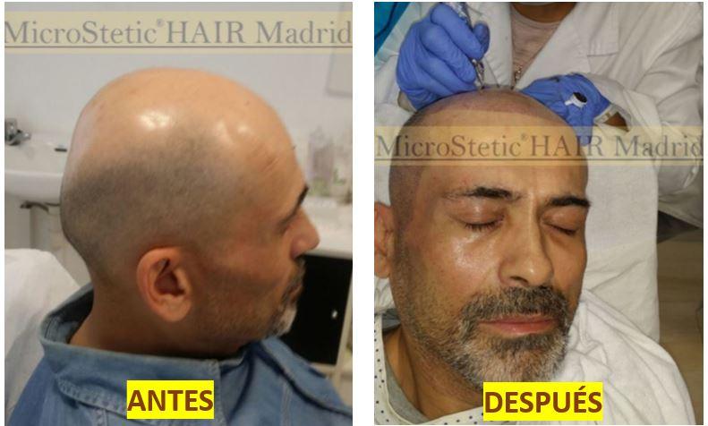 micropigmentación-capilar-madrid-precios-duración-desventajas-contraindicaciones-mantenimiento-opiniones-cicatrices